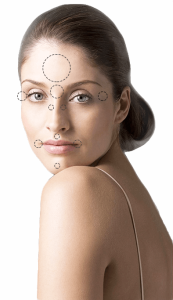 woman with lines drawn on face dipicting points that botox can improve