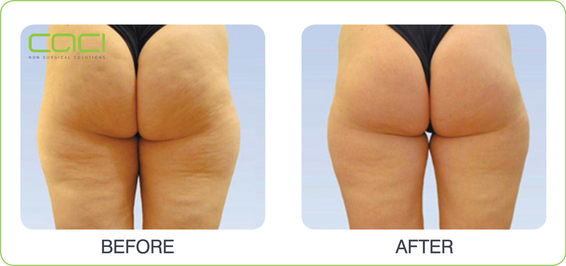 Caci Cellulite Body Sculpting Beautiful World Beauty Salon