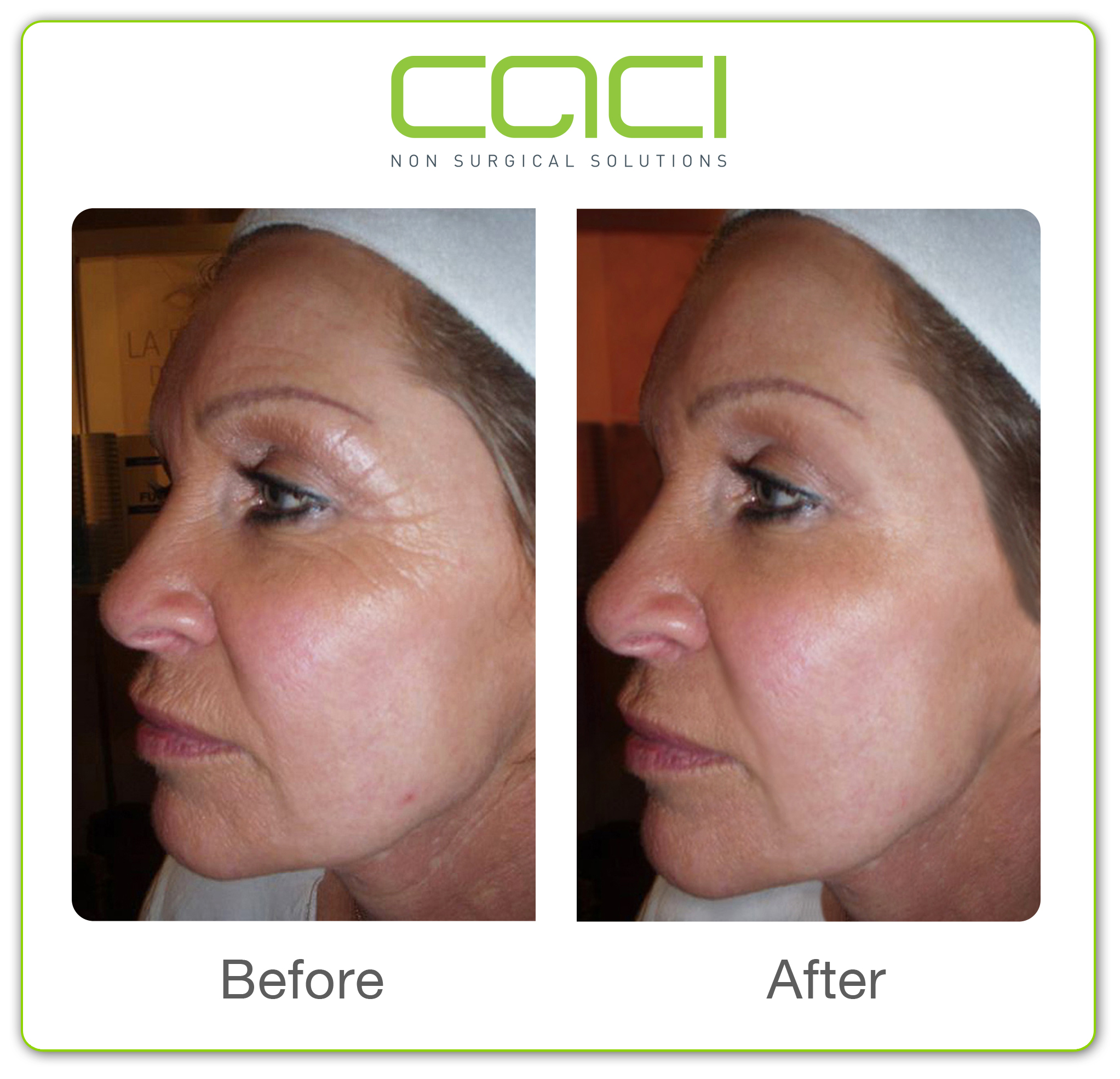 CACI Non-Surgical Face Lift - Beautiful World - Beauty salon, Twickenham