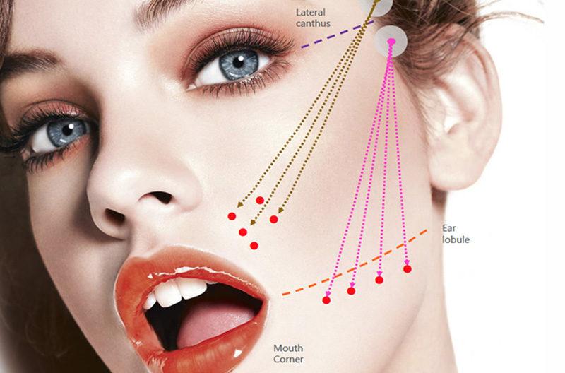 PDO Threads Full Face Lift - Beautiful World - Beauty salon